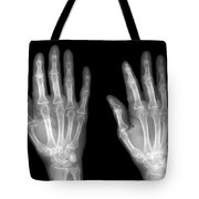 Normal Hand Tote Bag