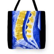 Normal Lumbar Spine Tote Bag