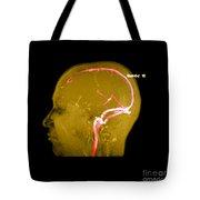 Normal Venous Anatomy Tote Bag