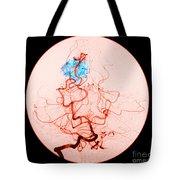 Occipital Lobe Avm Tote Bag
