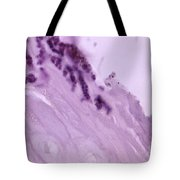 Pitted Keratolysis, Lm Tote Bag by Science Source