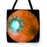 Retina Infected By Syphilis Tote Bag
