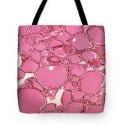 Thyroid Lm Tote Bag