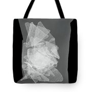 X-ray Of A Bag Of Corn Chips Tote Bag