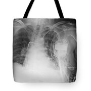 X-ray Of A Pacemaker Tote Bag