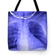 X-ray Of Enlarged Heart Tote Bag