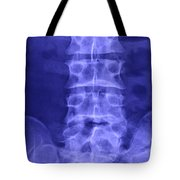 X-ray Of Lower Lumbar Spine Tote Bag
