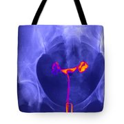 X-ray Of Ovaries Tote Bag