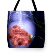 X-ray Of Swollen Abdomen Tote Bag