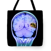 Mri Of Brain Avm Tote Bag