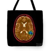 Mri Of Brain Avm Tote Bag