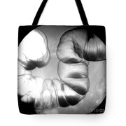Normal Double Contrast Barium Enema Tote Bag