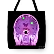 Brain Tumors Tote Bag