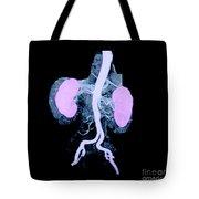 Abdominal Aorta And Kidneys Tote Bag