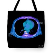 Ct Prostate Cancer Tote Bag