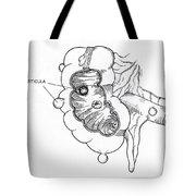 Diverticulitis Tote Bag