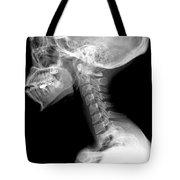 Human Skull And Cervical Spine Tote Bag