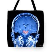 Mri Brainstem Cavernous Malformations Tote Bag