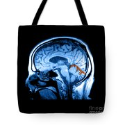 Mri Of Alcoholism Related Vermian Tote Bag