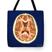 Normal Cross Sectional Mri Of The Brain Tote Bag