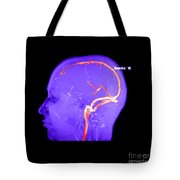 Normal Venous Anatomy Tote Bag