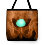 Normal Xray Of Urinary Bladder Tote Bag