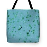 Pmpd Protein, Chlamydia Trachomatis Tote Bag