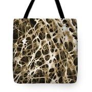 Sem Of Human Shin Bone Tote Bag by Science Source
