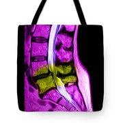 Spondylolisthesis & Canal Stenosis Tote Bag