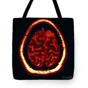 Mri Of Normal Brain Tote Bag
