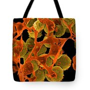 Methicillin-resistant Staphylococcus Tote Bag