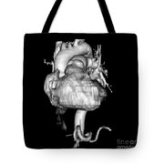 3d Cta Of Heart Tote Bag by Medical Body Scans