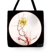 Abnormal Blood Flow Tote Bag