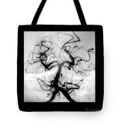 Angiogram Of Embolus In Cerebral Artery Tote Bag