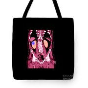 Ct Reconstruction Of Renal Cancer Tote Bag