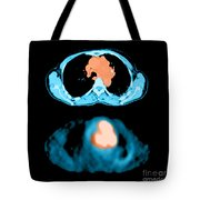 Metastatic Lymph Node Mass Tote Bag