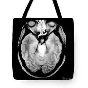 Mri Of Brainstem Glioma Tote Bag