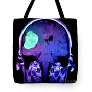 Right Sided Meningioma Tote Bag
