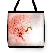 Serpentine Aneurysm Tote Bag
