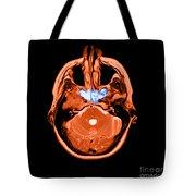 Sinusitis Tote Bag