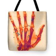 X-ray Of Gunshot In The Hand Tote Bag