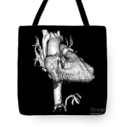 3d Ct Reconstruction Of Heart Tote Bag