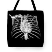 3d Cta Of Heart And Chest Tote Bag by Medical Body Scans