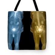Bone Scan Tote Bag