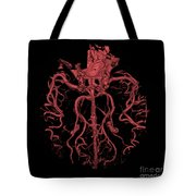 Intracranial Ct Angiogram Tote Bag