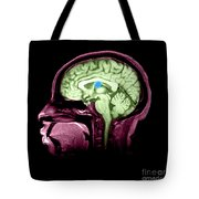 Mri Colloid Cyst Of Third Ventricle Tote Bag