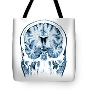 Normal Coronal Mri Of The Brain Tote Bag