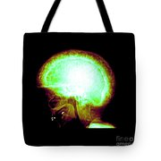 Pagets Disease Tote Bag