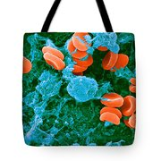Red Blood Cells, Rouleaux Formation, Sem Tote Bag