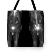Bone Scan Tote Bag by Medical Body Scans